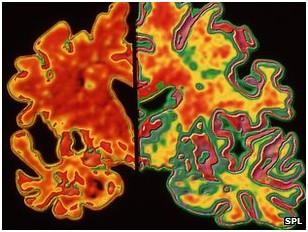Solda Alzheimer hastalıklı bir beynin kesiti belirgin beyin hücre kaybını gösteriyor